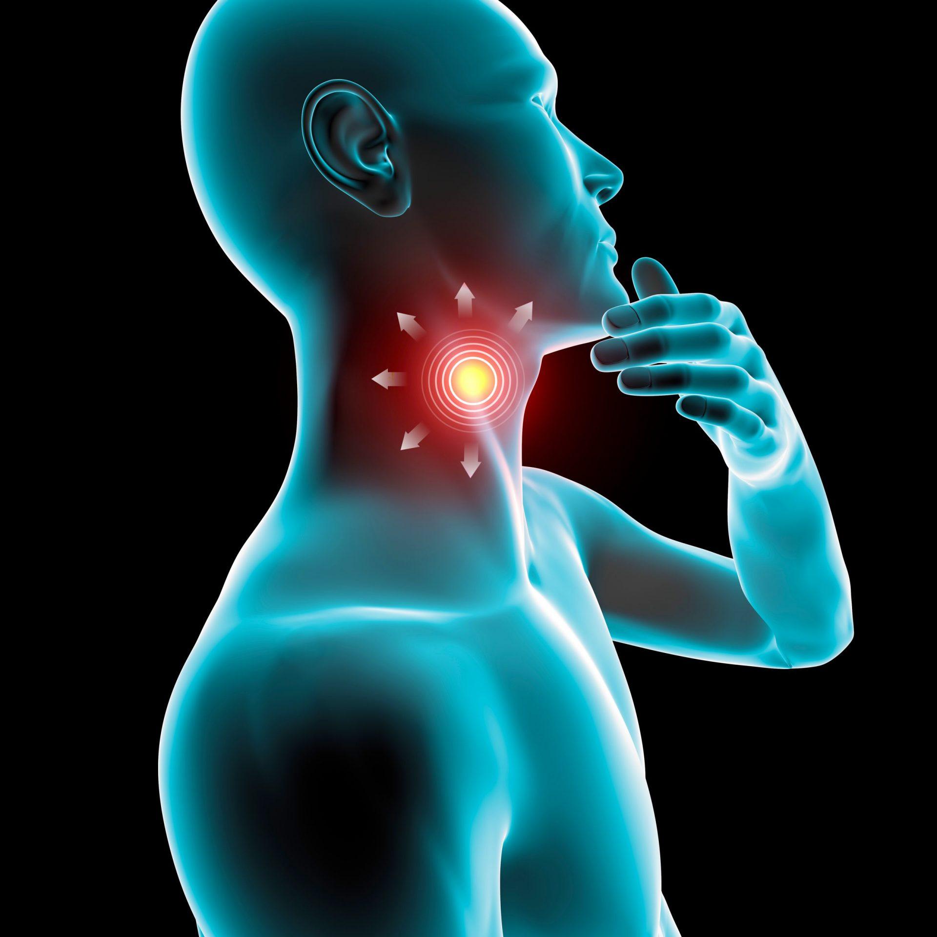 Homeopatia para dor de garganta: Qual o melhor remédio?