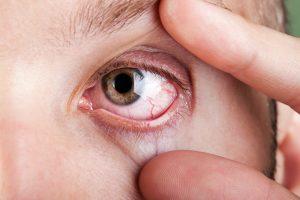 homeopatia para olho seco