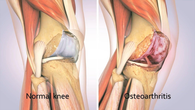 Traumeel para tratamento de artrose de joelho