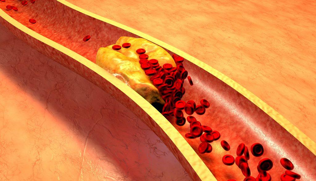 Colesterol alto pode matar Saiba como prevenir, os sintomas, como tratar e conheça opções de dieta
